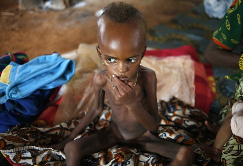 A sick internally displaced Muslim girl in Boda, Central African Republic. REUTERS/Goran Tomasevic