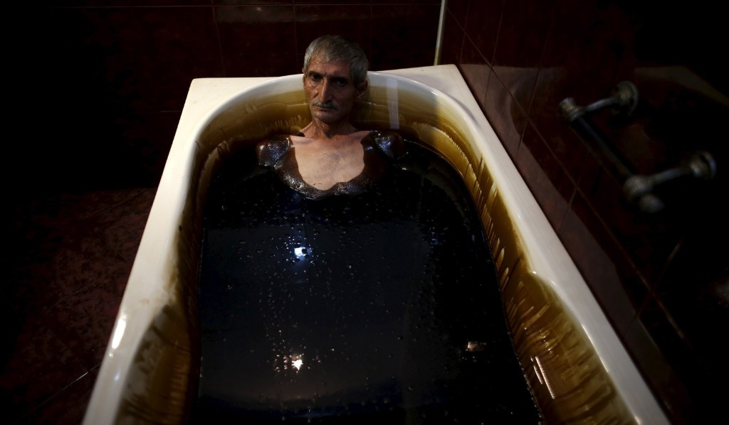 A man lies in a bathtub filled with crude oil during a health therapy session at Naftalan Health Center in Baku. According to a medical specialist at the centre, the oil can heal more than seventy diseases. REUTERS/Stoyan Nenov