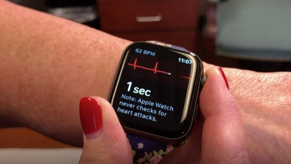 Kentucky woman credits gifted Apple Watch with detecting AFib while asleep - 9to5Mac
