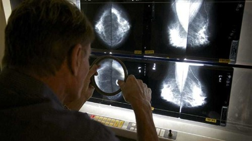 Global cancer cases exceed 14 million