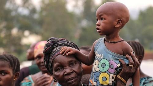Uganda strains as thousands flee violence in DR Congo's Ituri