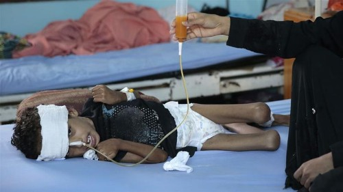 Yemen: 85,000 children may have died from starvation