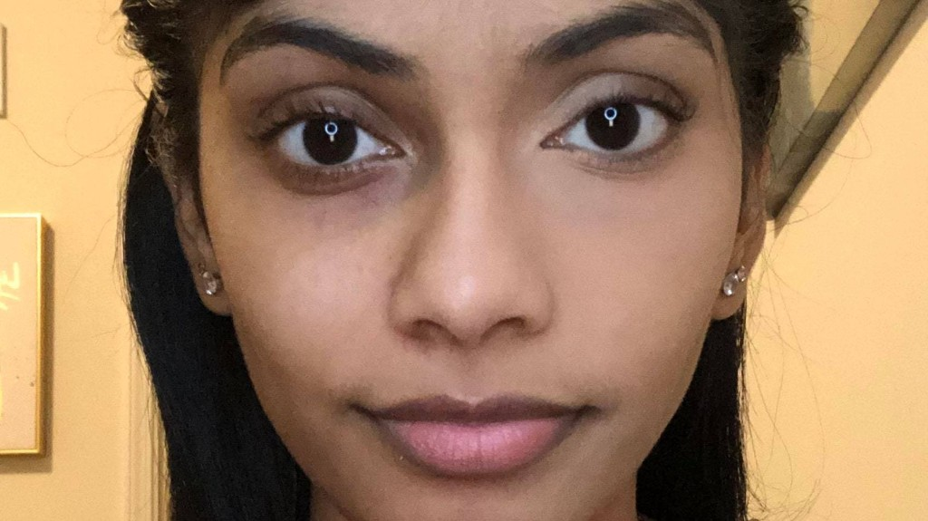 Reddit Is Begging This Woman for Concealer Tips, Thanks to Her Wild Before-and-After Photo