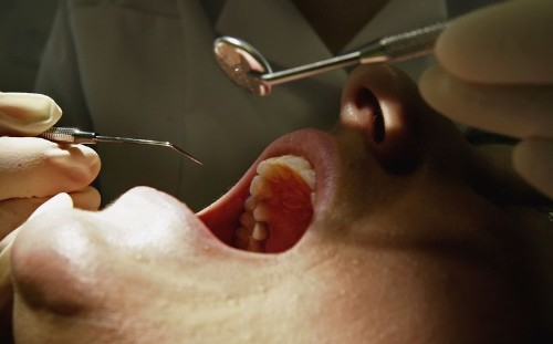Dental fillings for your cavities could soon be a thing of the past