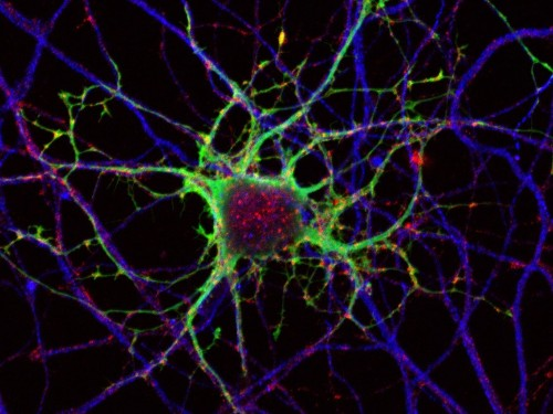 New research could help make brain disorders treatable