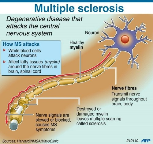 Gene study confirms low Vitamin D, multiple sclerosis link