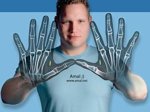 8 People Who Implanted Tech Gadgets Directly Into Their Bodies