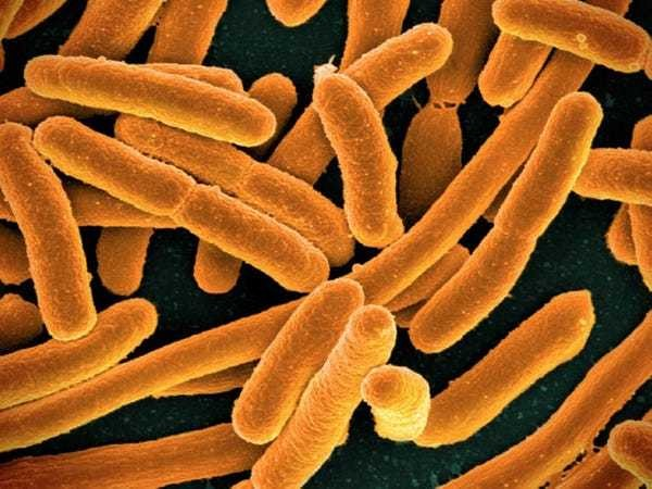 A single gene in E. coli bacteria could hold clues for extending the human lifespan - Business Insider
