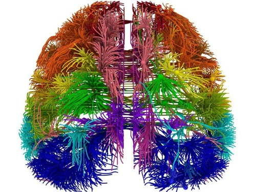 Stunning New Map Could Help Unravel The Mysteries Of The Brain