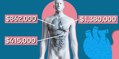 Why organ transplants are so expensive in the US