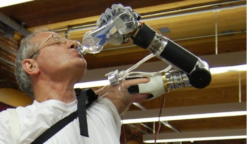 The Guy Who Invented The Segway Made A Mind-Controlled Prosthetic Arm That Really Works