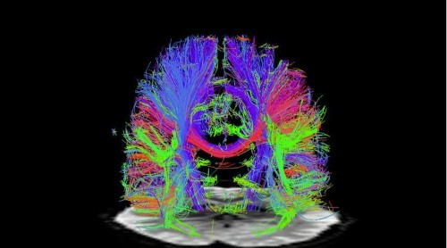 15 Emerging Neurotechnologies That Will Change The World