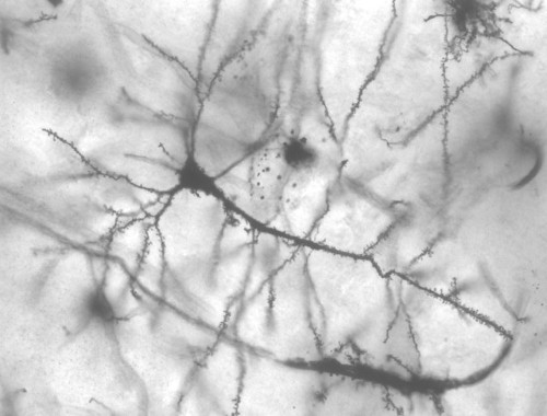 A simple explanation of Guillain-Barré syndrome, the rare nerve disorder that scientists suspect may be linked to Zika virus
