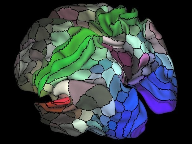 A first of its kind study found that brain training cuts the risk of dementia in healthy adults