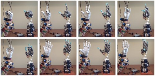 Researchers want to grow human tendons on an incredibly advanced robotic hand