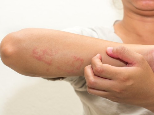 7 tips for treating eczema, according to dermatologists