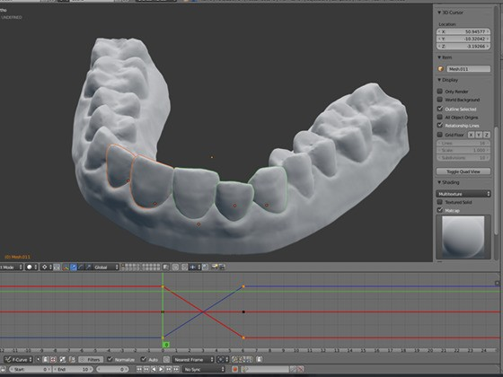 This guy fixed his teeth by 3D printing his own plastic braces for $60