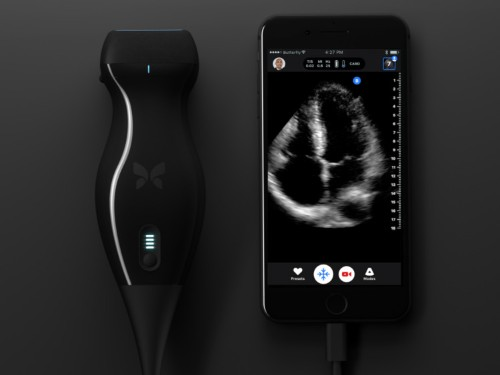 A doctor diagnosed his own cancer with an iPhone ultrasound