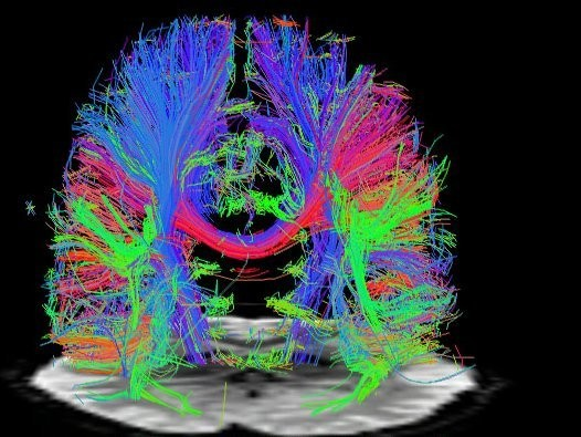 Scientists May Have Found A Way To Bring Back Memories Of Dementia Patients