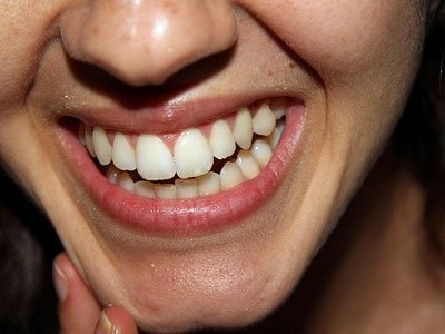 3 Teeth-Whitening Products That Actually Work