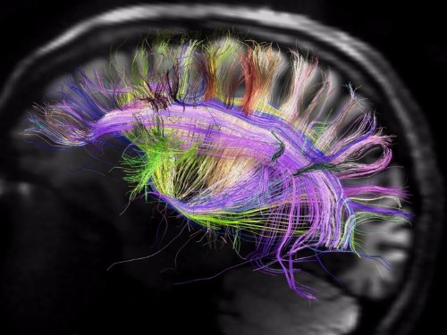 This might be the most detailed map of the human brain we've ever seen
