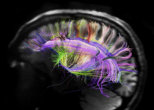 We're learning more about the brain than we've ever known before, but that raises three serious ethical questions