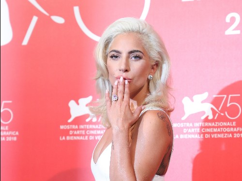 Lady Gaga's whole body was X-rayed after falling from the stage - Business Insider