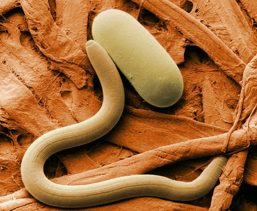 Scientists revived tiny Siberian worms that had been frozen in permafrost for 42,000 years — and they started moving and eating