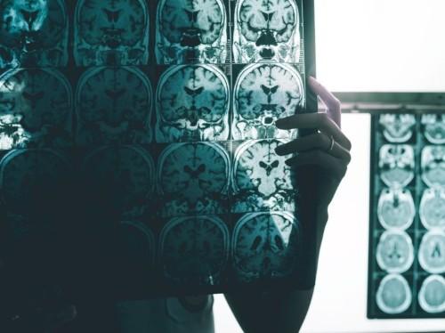 Biogen aducanumab failure: Alzheimer's cure flops