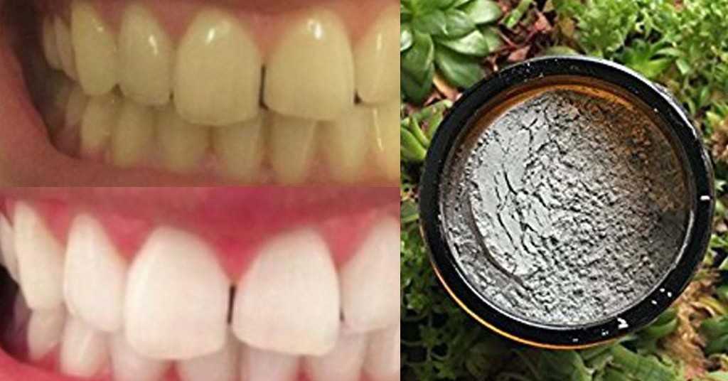 14 Teeth Whiteners That Actually Really (Really!) Work