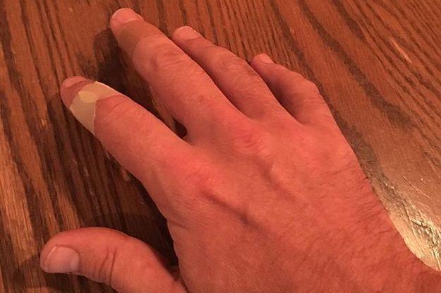 Jimmy Fallon Keeps On Getting Injured