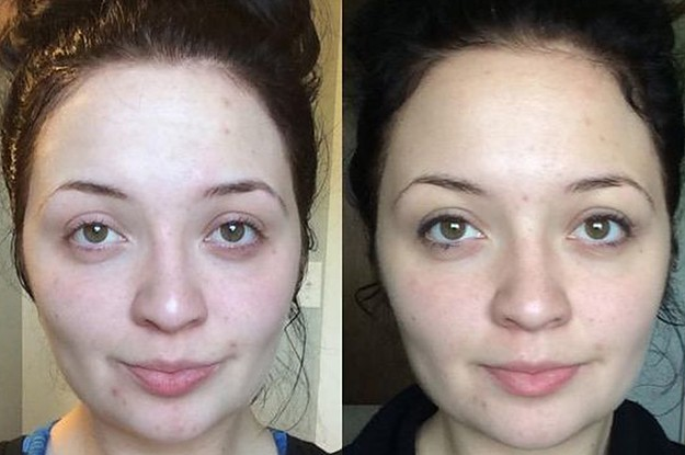 36 Super Simple Ways To Improve Your Skin Long-Term