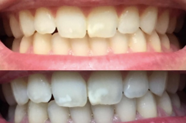 14 Teeth Whiteners That Work So Well, It's Like Magic
