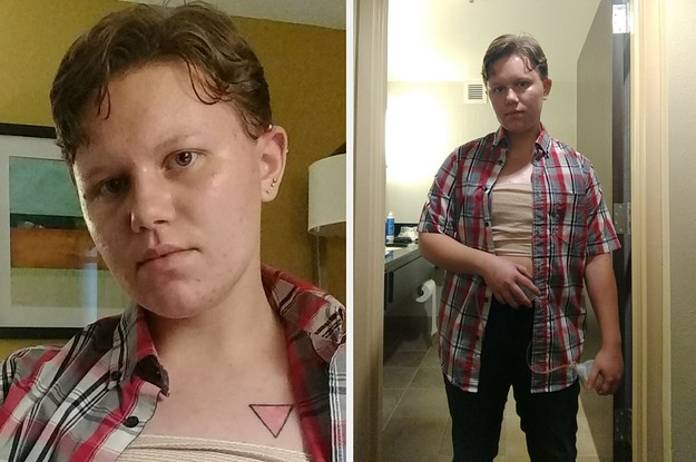 This Transgender Man Was Kicked Out Of His College After Getting Top Surgery