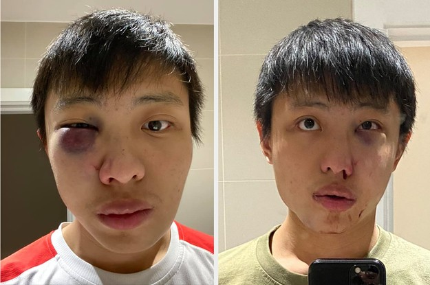 "An Asian Student Said He Was Beaten Up By Men Who Yelled ""I Don't Want Your Coronavirus In My Country"""