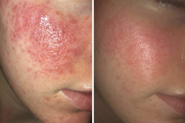 29 Things That Will Help Make Your Skin Clearer Than It's Ever Been