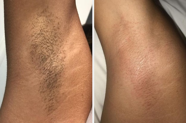 Thousands Of People Swear By Cirépil Wax For Painless Waxing And Saving Money
