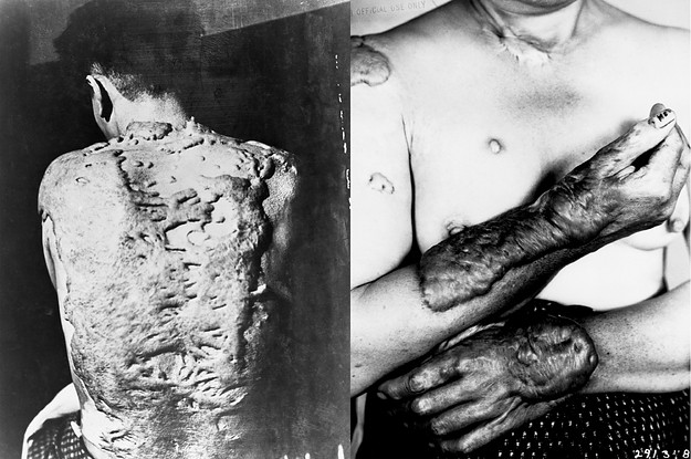 These Horrific Photos Of The Hiroshima Bombing Were Classified For Years
