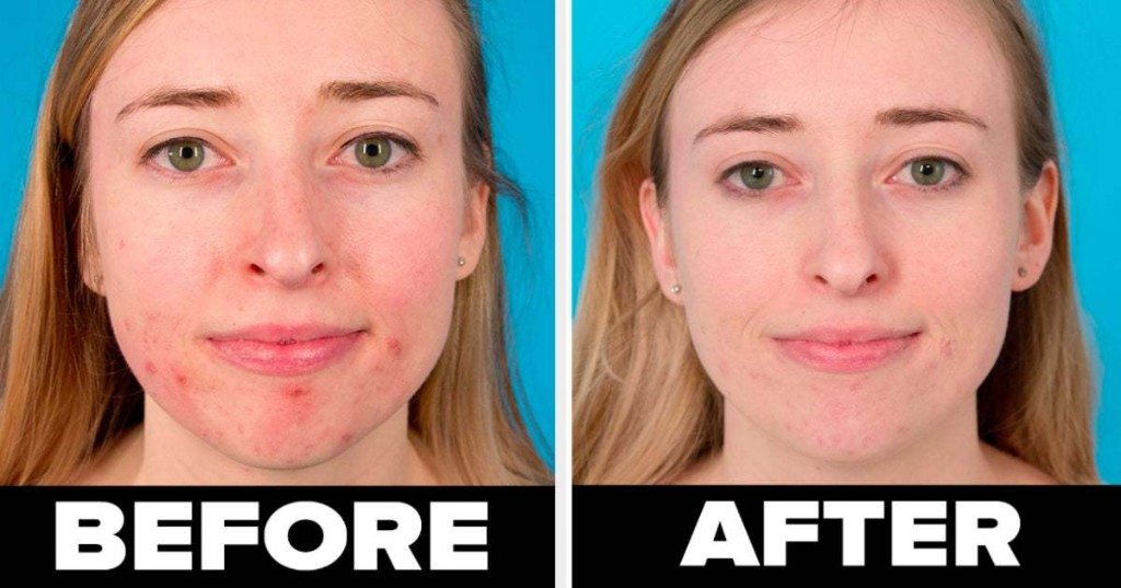 34 Skincare Basics You'll Probably Wish You'd Known About Sooner