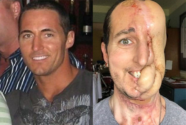 This Man Lost Half His Face To Cancer, But Had It Rebuilt With Skin From His Arms And Legs