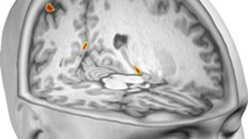 Es fácil hacer que tu cerebro piense estar en el cuerpo de otro