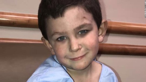 He pulled his sister out a window in a house fire and went back in to save the family dog. He's 5 years old