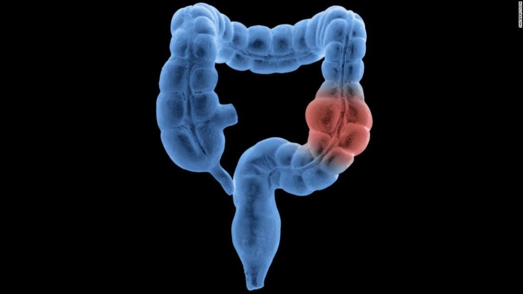 Colon and rectal cancer cases are going up among people younger than 50, researchers say