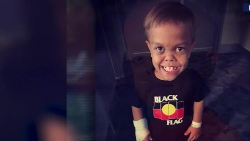 Bullied 9-year-old Quaden Bayles paid a price for outpouring of support