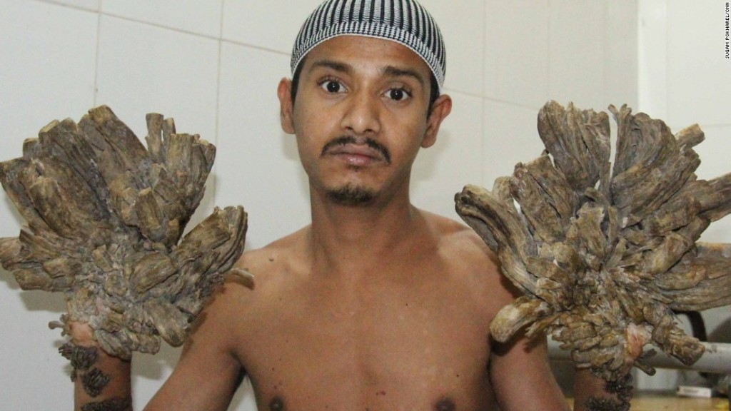 Bangladesh's 'Tree Man' undergoes first surgery - CNN