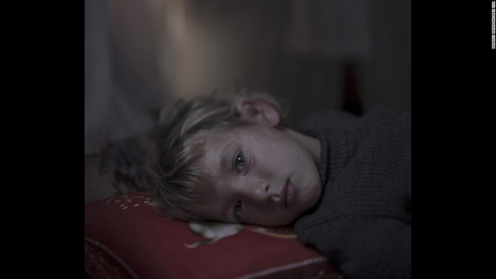 Child refugees scarred by war