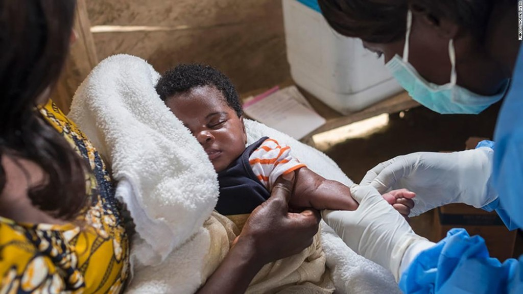 World's worst measles epidemic kills 6,000 people in Democratic Republic of Congo