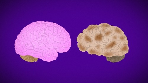 Doctors newly define another type of dementia, sometimes mistaken for Alzheimer's