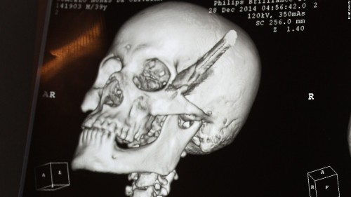 Man survives brawl that left a knife stuck in his head for hours