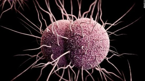 Three STDs reach all-time highs in the US, new CDC report says